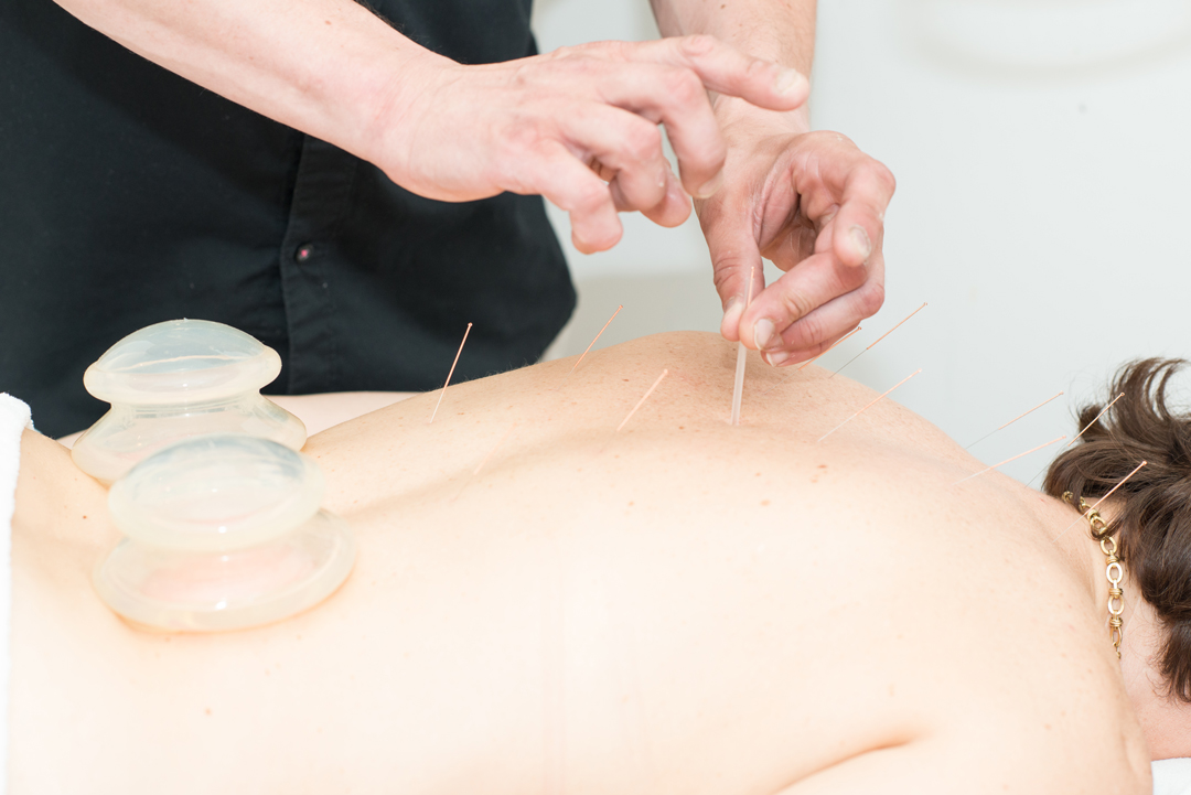 acupuncture_bodyspa